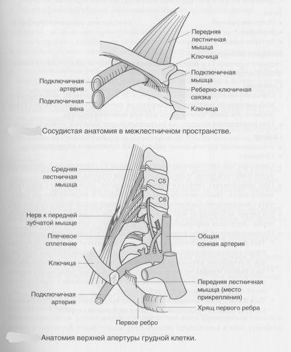 Компрессионный синдром верхней апертуры грудной клетки