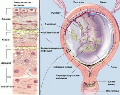 Внутриутробная инфекция у плода и новорожденного