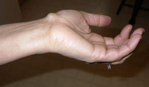 Хронический теносиновит лучевого сустава