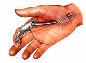 онлайн две руки во влагалище