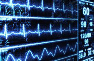 Лечение синдрома удлиненного интервала QT