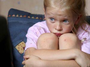 Тревожные расстройства у детей: лечение, симптомы, причины