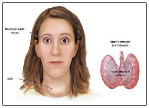 базедова болезнь, лечение, симптомы, причины (болезнь грейвса)