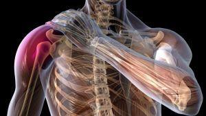 Изображение - Повреждение нерва плечевого сустава 94ced64c80d7466c1a3315996d209387_S