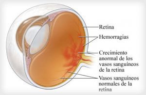 Діабетична ретинопатія лікування