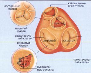 Недостаточность клапана легочной артерии 2 степени
