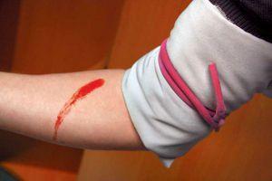 Кровотечение неотложная помощь на догоспитальном этапе thumbnail